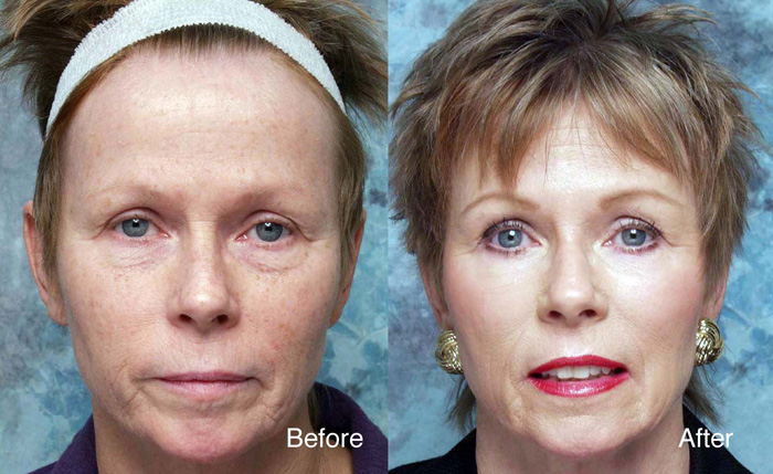 Cranberry Turnover Facial Peel in and near Ft Myers Florida