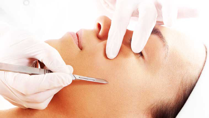 Dermaplaning in Ft Myers Florida