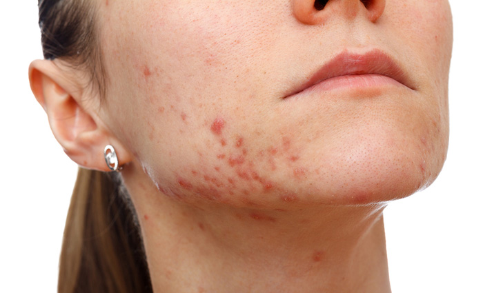 Acne Facials in Florida