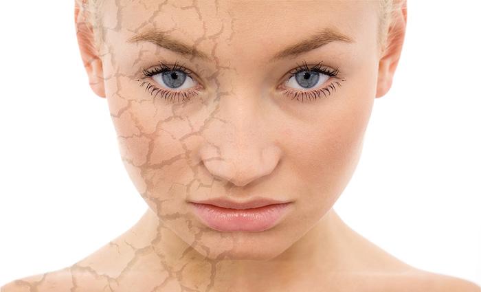 Chemical Facial Peels in Florida