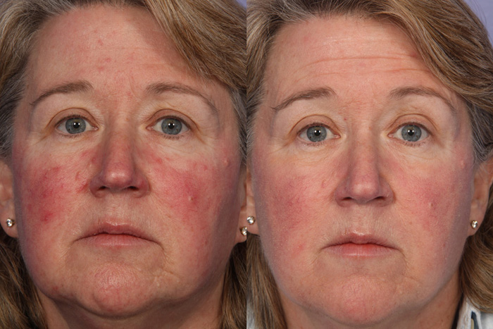 Cranberry Turnover Facial Peel in Florida
