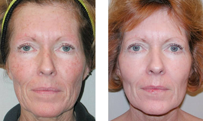 Lactic Lightening Facial Peel  in Florida