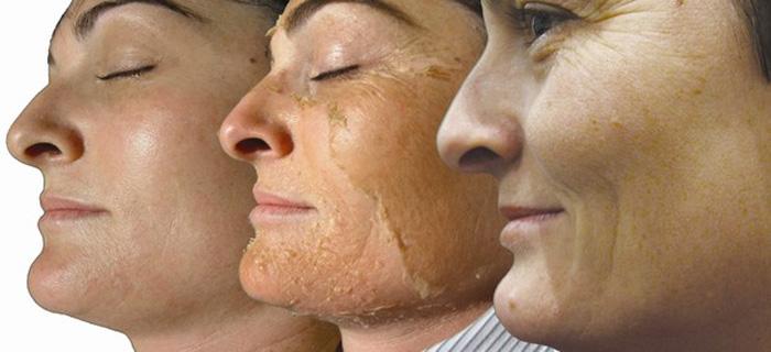 Enfrente o cuidado de pele de problema