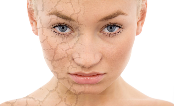 Chemical Facial Peels in and near Naples Florida