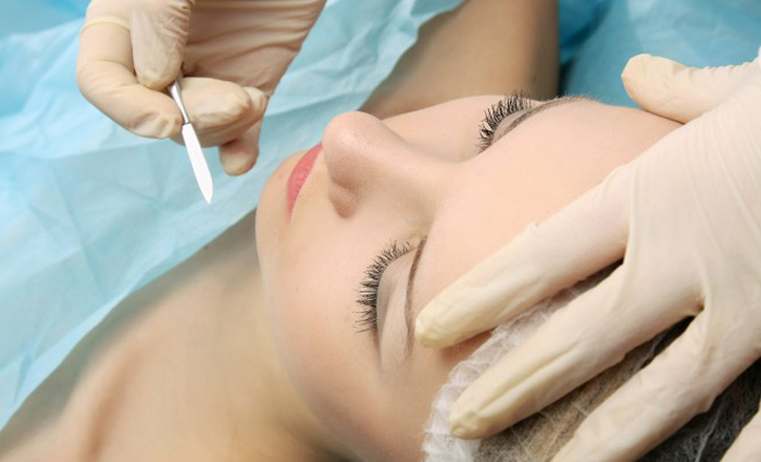 Dermaplaning in Naples Florida