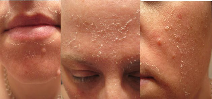 Glycolic Peel in and near Naples Florida