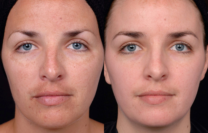 Lactic Lightening Facial Peel  in and near Naples Florida